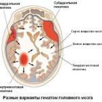 Виды внутричерепных гематом