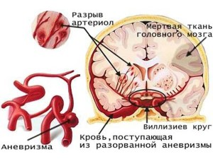 anevrizma-1