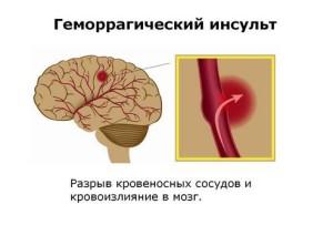 gemorragicheskiy-insult