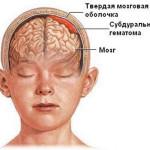 Ушибы головного мозга